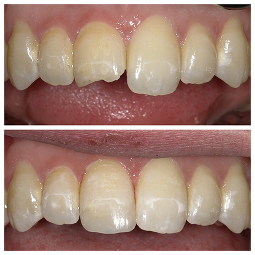Before and after image of a mouth after dental bonding.