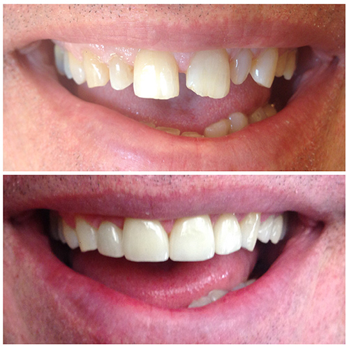 Before and after veneer smile at Eugene Dental Group