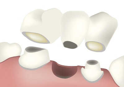 Diagram of a dental bridge from dentist office in Eugene, OR.