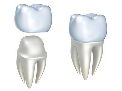 Dental Crowns by dentist in Eugene, OR.