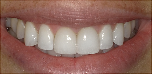 Smile after Porcelain Veneers at Eugene Dental Group