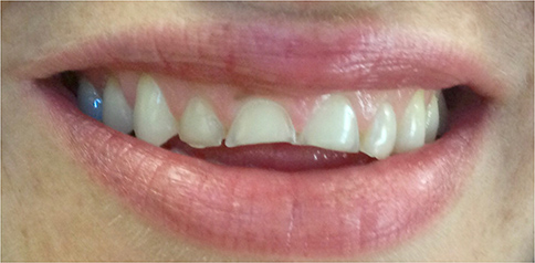 Smile before porcelain veneers at Eugene Dental Group