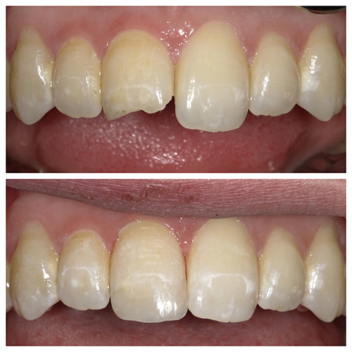 Cosmetic Bonding at Eugene Dental Group, in Eugene, OR