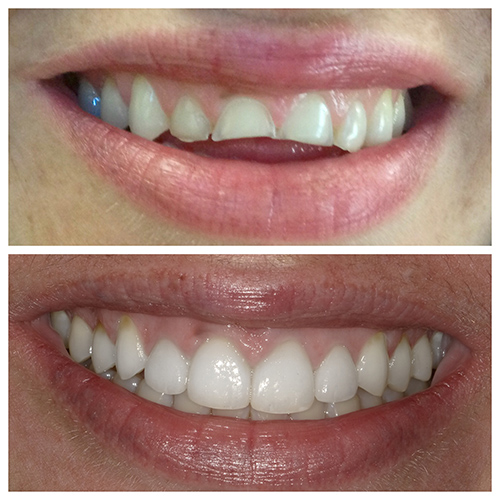 Veneers at Dr. Vivona