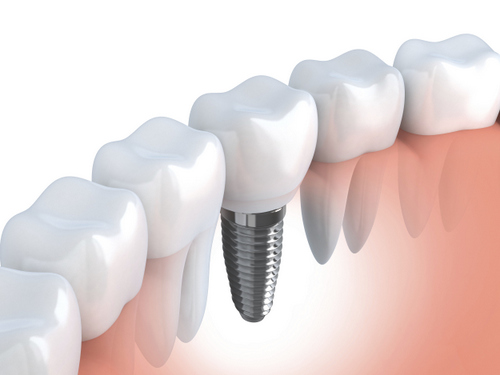 Dental Implants at Eugene Dental Group, in Eugene, OR