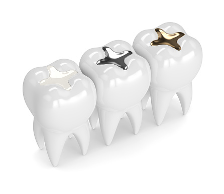 A side by side comparison of composite, amalgam, and gold fillings