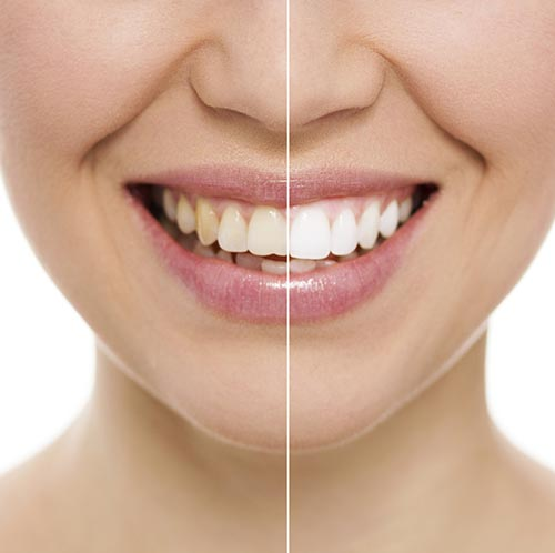 Teeth Whitening at Eugene Dental Group